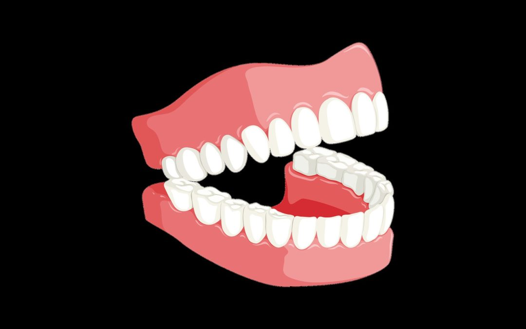 5 Things You Need to Know About Dentures